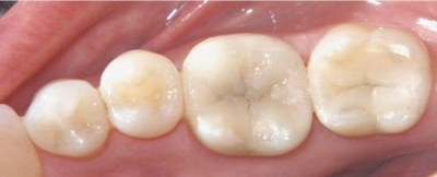 Composite Fillings When removing decay or repairing small breaks of your teeth, we restore teeth with composite.  Composite is a tooth colored resin filling material.  This material is chosen over amalgam (silver) fillings because it is not a mixture of metals that can expand and contract and potentially result in fracturing of your tooth. Additionally, composite resin fillings are chemically bonded to your tooth which makes the tooth stronger.