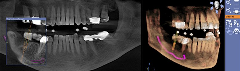 3D Jaw Analysis for Implant Planning