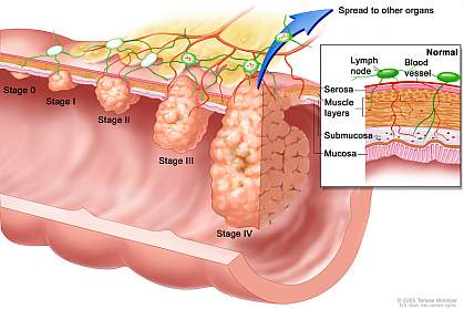 Colon Cancer Awareness 3_North Country Gastroenterology.jpg