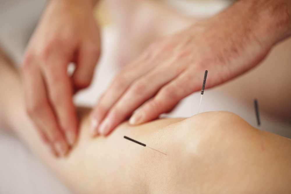 Acupuncture - Recognized by the World Health Organization (WHO), acupuncture is one of the most effective forms of natural pain management, and has been practiced in Chinese medicine for centuries.