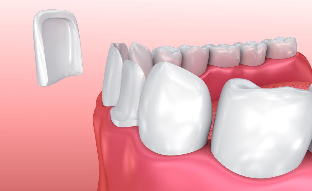 Veneer_Banyo-Dentist