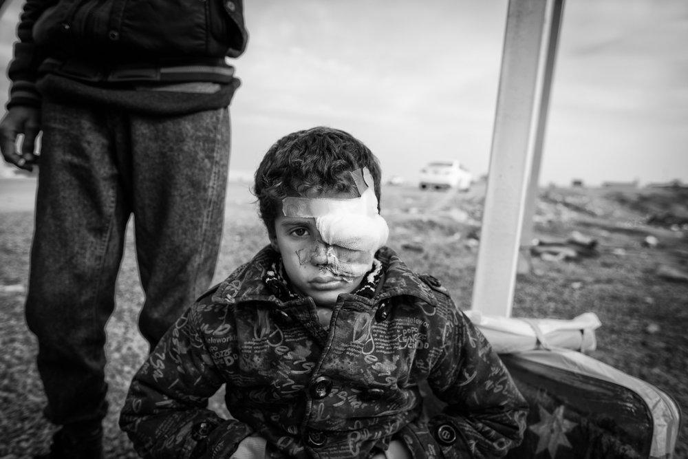 Mosul/Erbil, Irak. December 2016    Han ville bara leka utomhus    Visa berättelsen >>