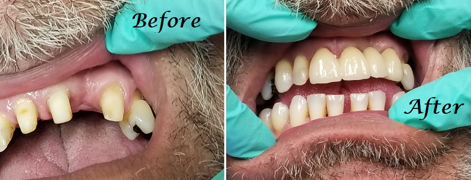 - crown prep vs. completed treatment