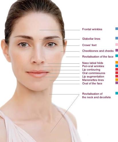 Filler Hamilton Botox Hamilton Filler Binbrook Botox Binbrook Lococo Wellness Clinic