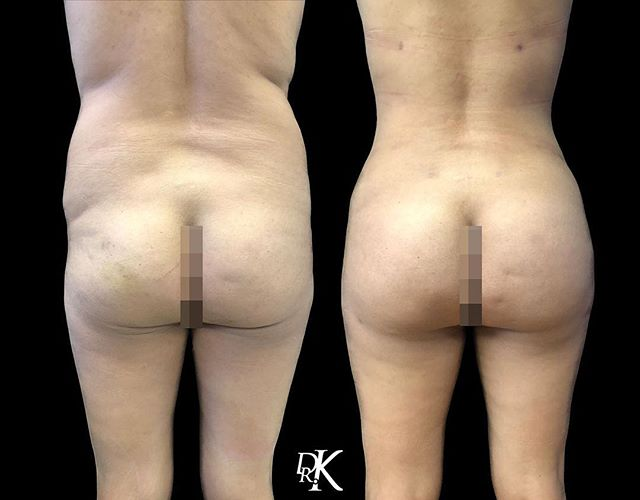 The Brazilian Butt Lift is process of liposuctioning unwanted fat, then harvesting your fat in order to transfer it into the buttocks. The BBL procedure allows the patient to have the desired hour glass figure with a natural feel and aesthetic. This before and after is wonderful depiction of Dr. K's magical BBL work 🔥
