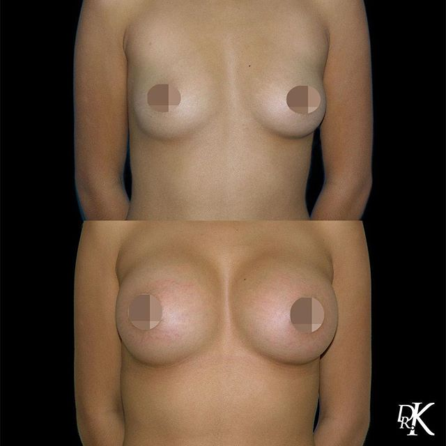 This patient of ours underwent a Breast Augmentation with silicone implants giving the patient a new size, shape and contour of the breasts.⁣⠀ 🤩She is absolutely thrilled with her results and is a happy patient for life at Dr. K Plastic Surgery.