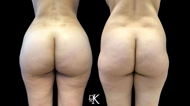 #TransformationTuesday The Butt Lift is a surgical procedure that can be customized to meet each individual patient's unique needs and desired results. ⁣😍🍑