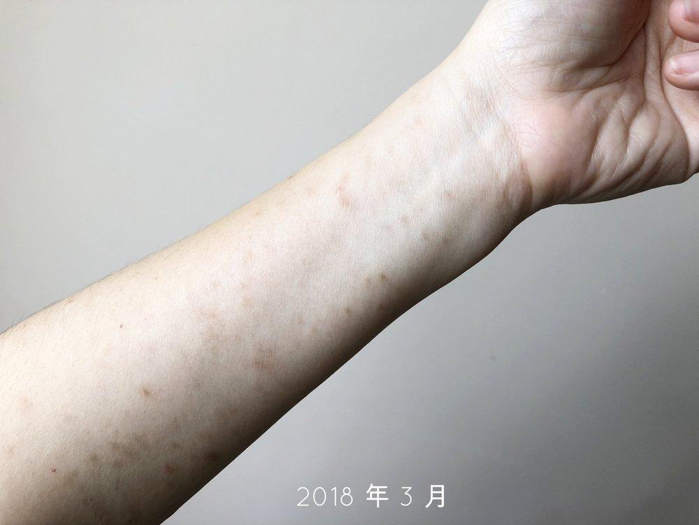 B- mar 2018.jpg
