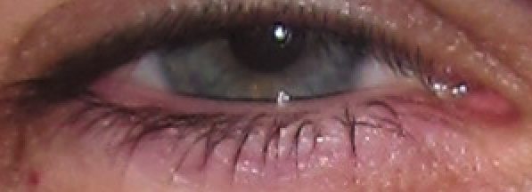 Eye3.png