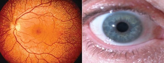 On the left is a retina image. On the right is an iris image.