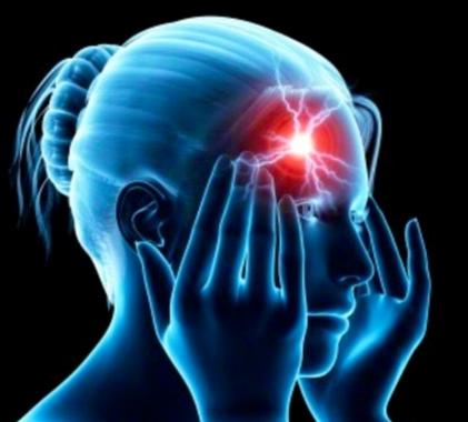migraines pic.jpg