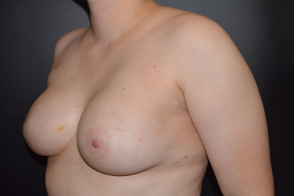 Bilateral Nipple Sparing Mastectomy