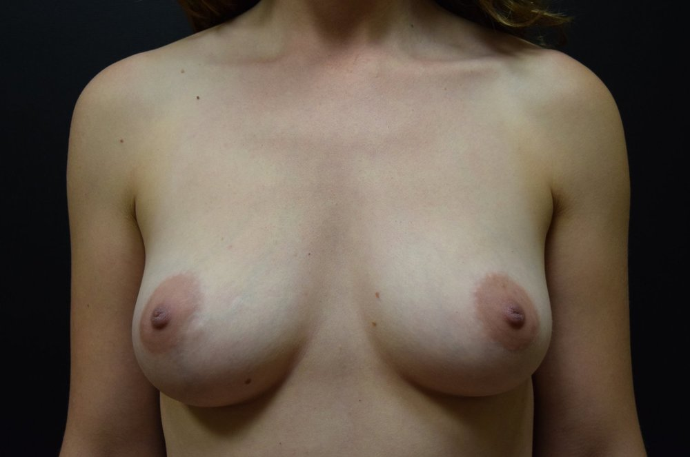 Right Nipple Sparing Mastectomy