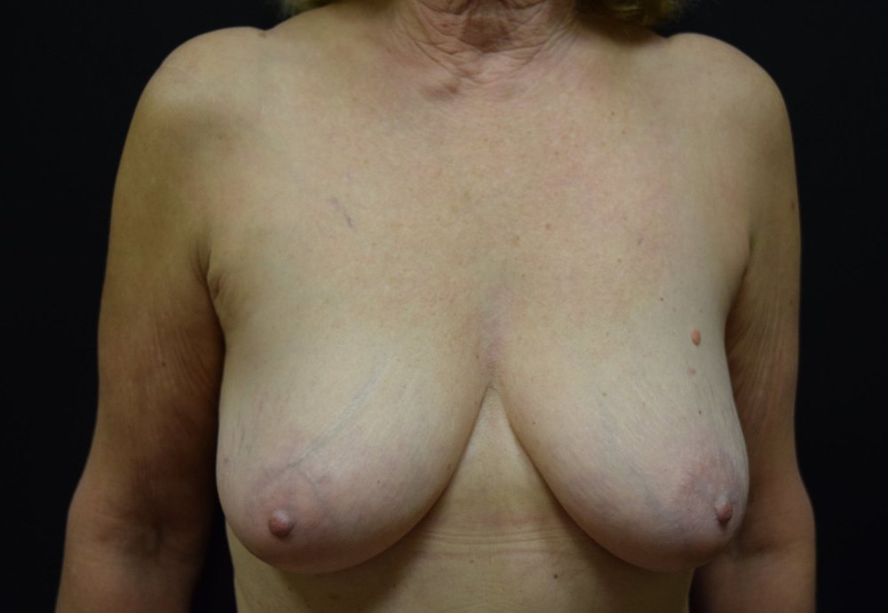 Right Nipple Sparing Mastectomy with Breast Reduction and Lift