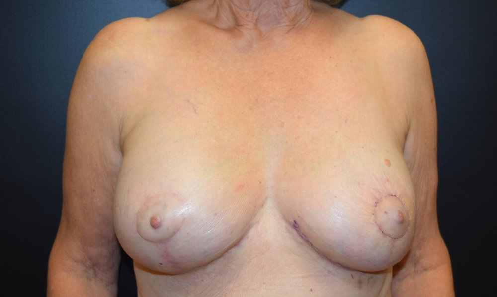 Right Immediate Reconstruction with Bilateral Breast Reduction