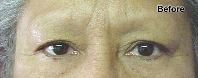 permanent_makeup_eyebrows_2_before.png