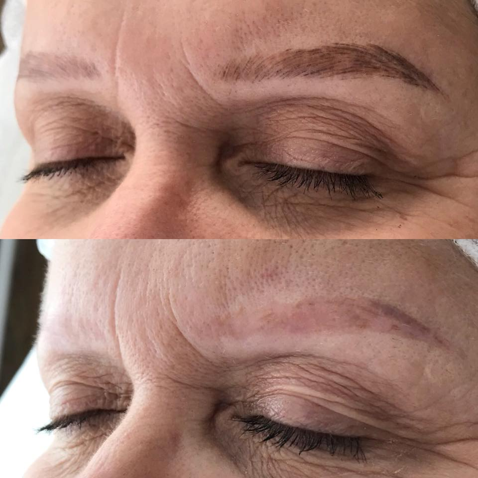 Example of pigment removal/lightening using LI-FT (NOT my work/Photo Courtest of LI-FT )