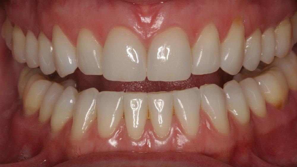 Two porcelain veneers to restore worn teeth by Dr. James Salazar