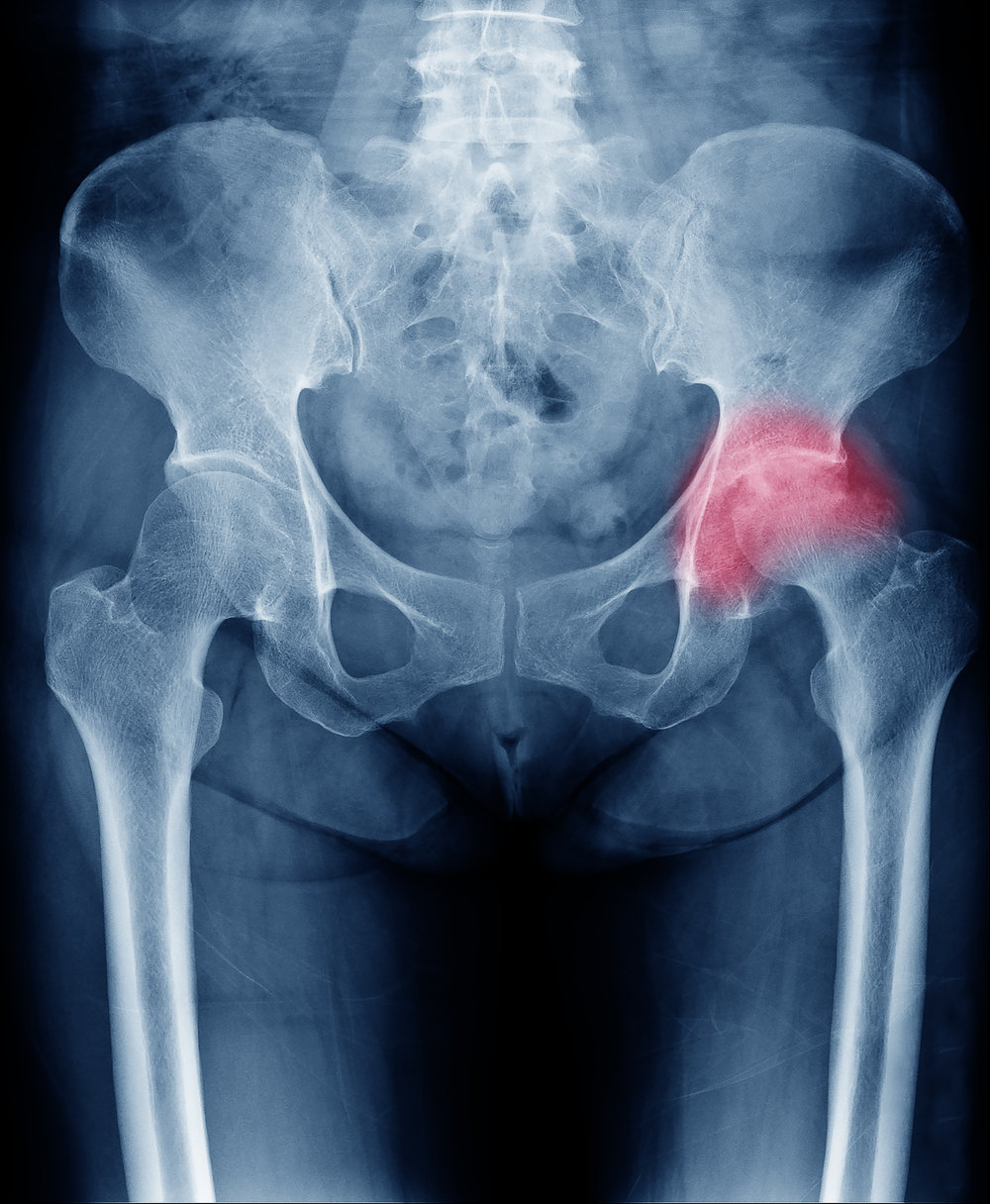 Hip/Knee Joint Degeneration -