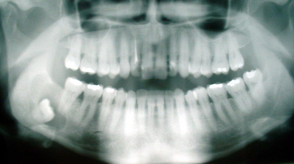 Cyst_-_wisdom_tooth.jpg