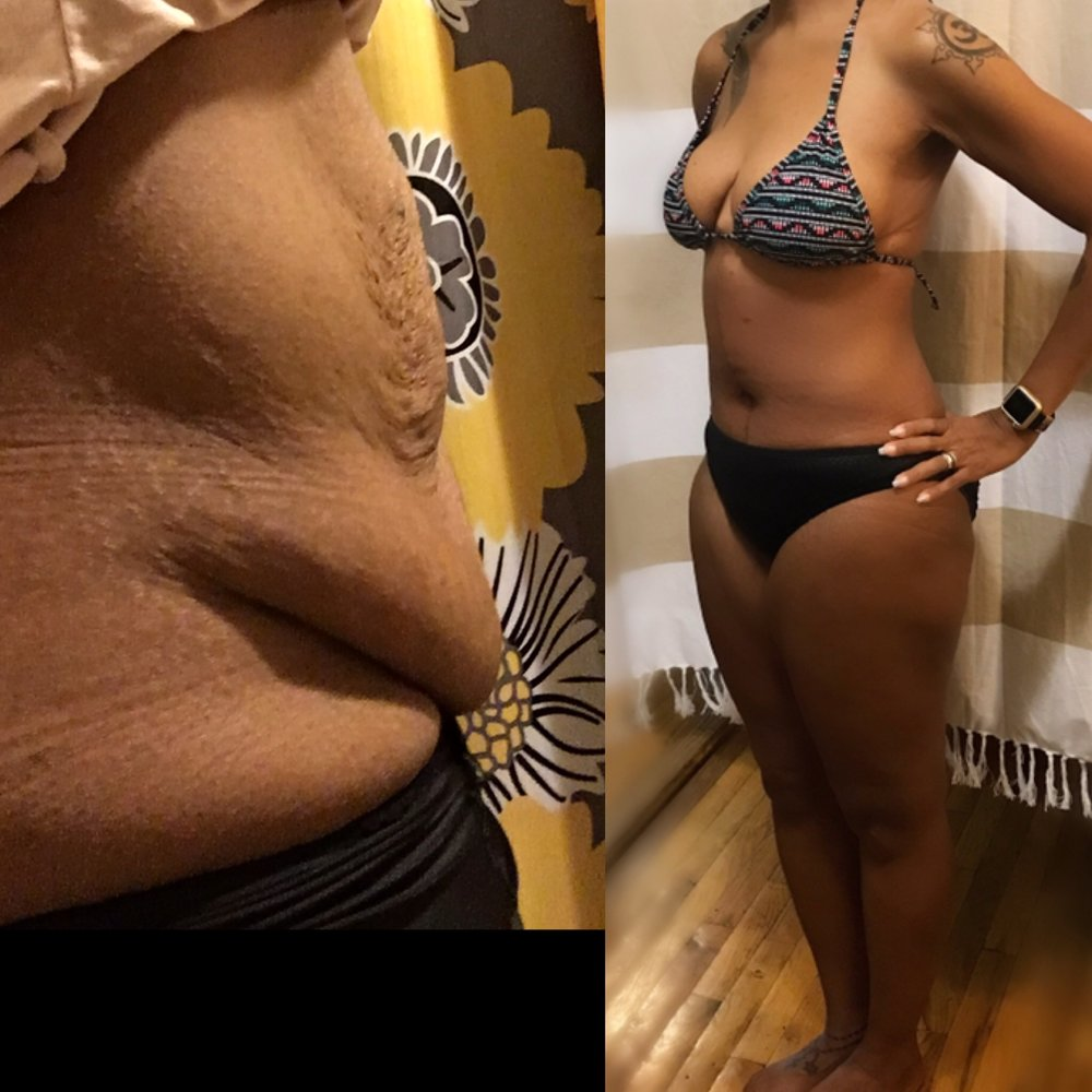 Before and After Tummy Tuck ( 3 months after Tummy Tuck ! )