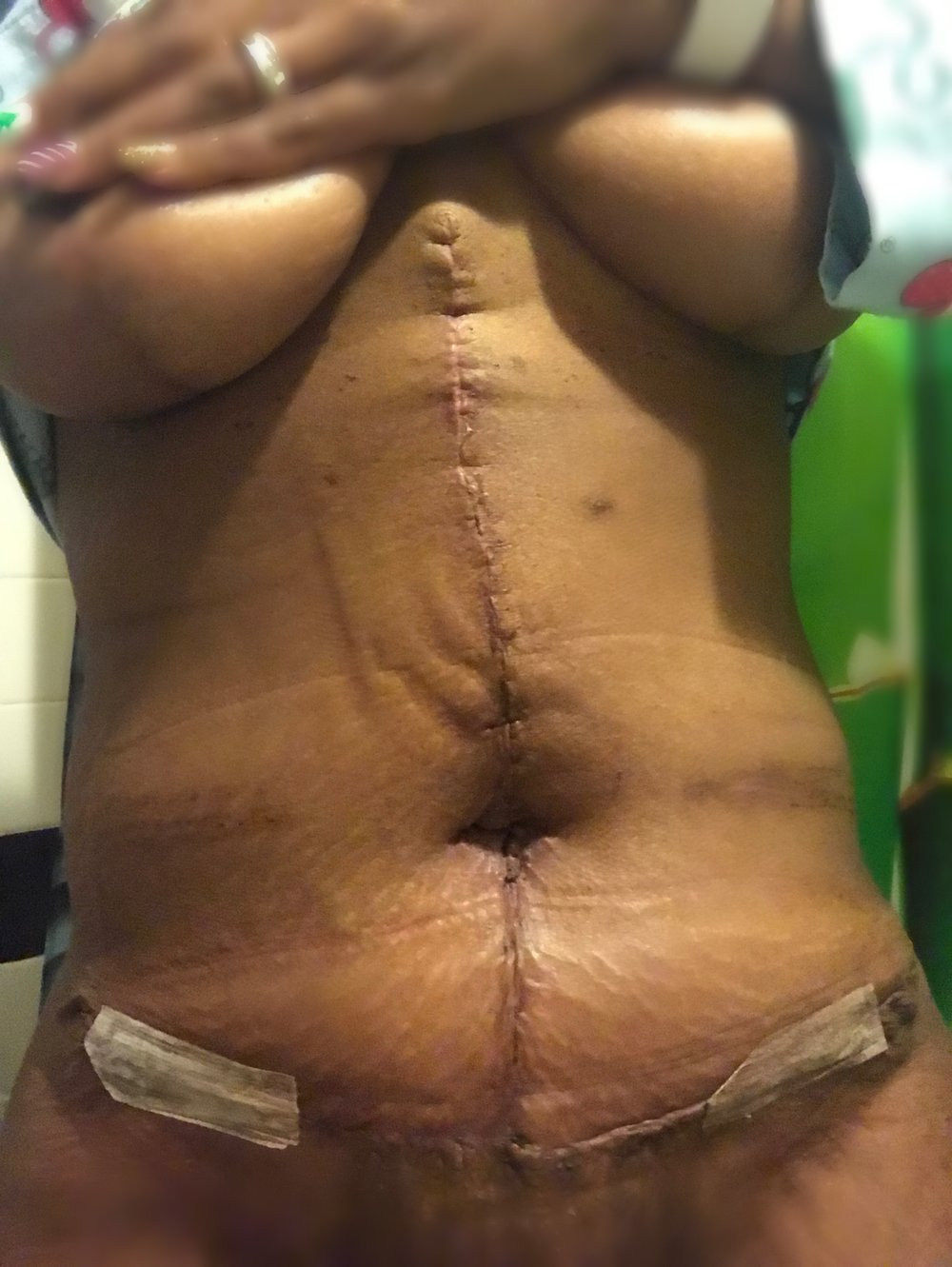 2 weeks after Tummy Tuck