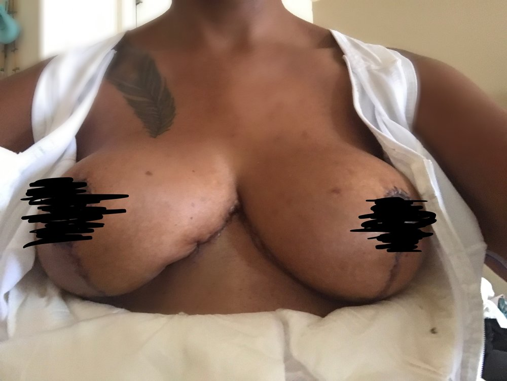 Drains out - 8 days after Breast Augmentation