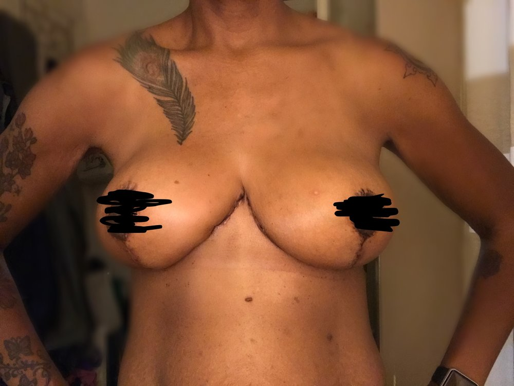 2 weeks after Breast Augmentation