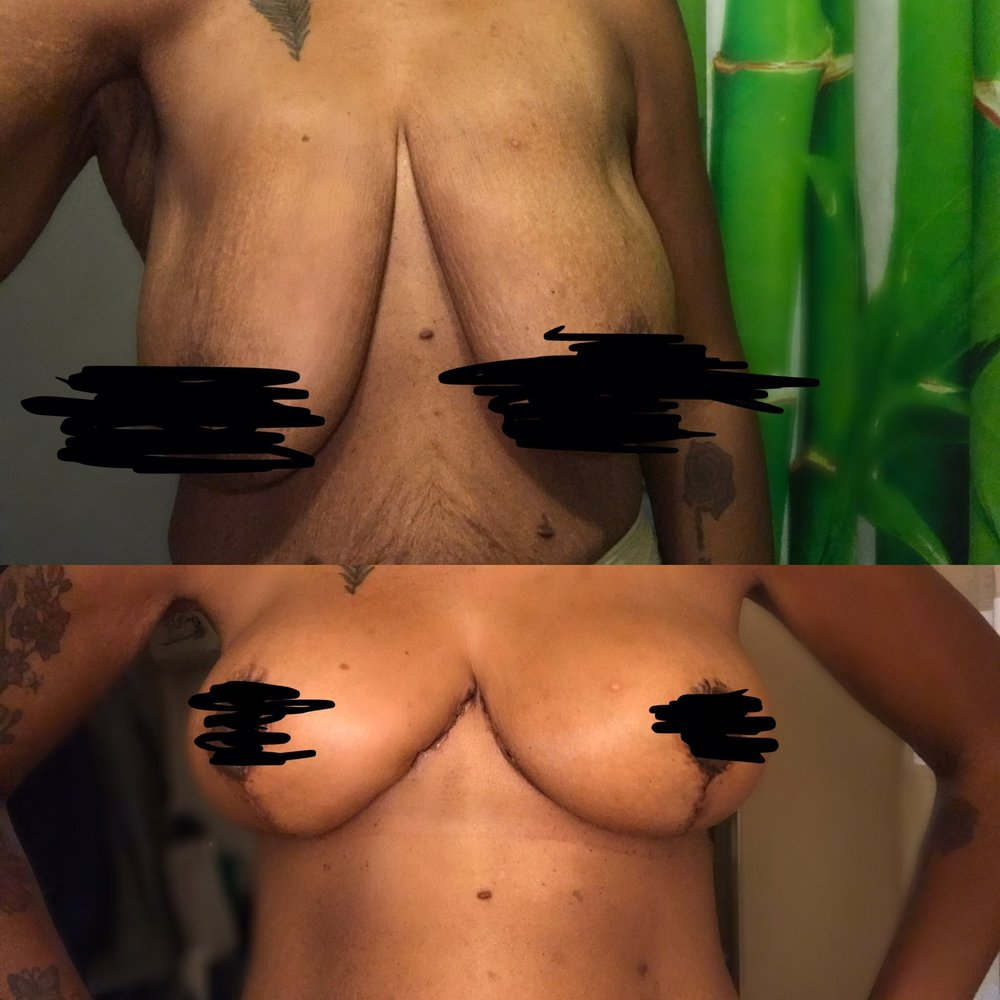 Before  (TOP PHOTO)  and After (BOTTOM PHOTO)   Breast Augmentation Mammoplasty