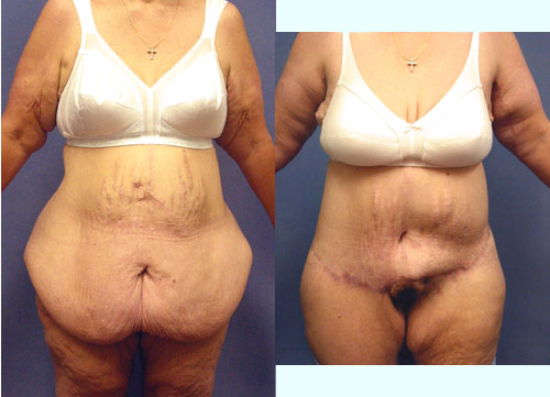 Photo (Left) Loose Excess Abdomen after Gastric Bypass procedure