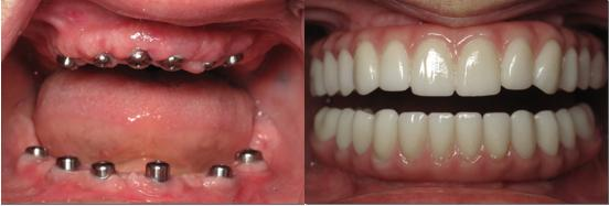 Implants were placed and used and a hybrid denture was fabricated and screwed into the implants giving this patient a full set of new teeth for the upper and lower Jaws. Patient reported that she can now chew chicken wings again and has not done so in 20 years!