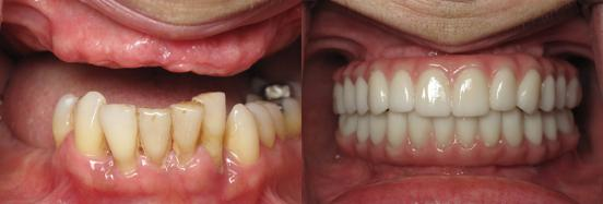 This  patient had no upper teeth and missing many lower teeth. All lower teeth were removed
