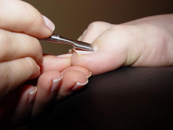 Ingrown toenails miami hialeah fl podiatrist julette perez