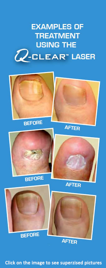 laser fungal toenails miami hialeah fl podiatrist julette perez