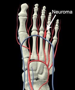 morton's neuroma podiatrist juliette perez miami hialeah fl