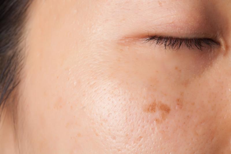 Skin_Medlite C6 Detail.jpg