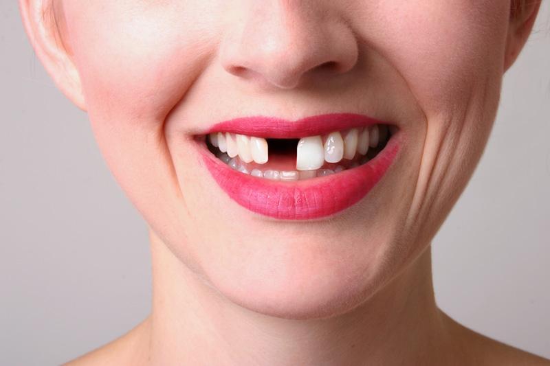 Smile_Crowns and Veneers Detail
