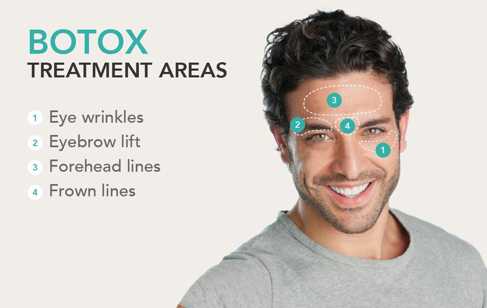 Image result for botox men