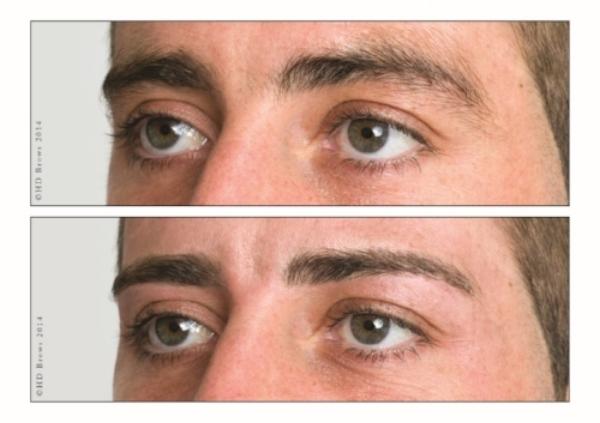 Laser-Hair-Removal-Image-2.jpeg