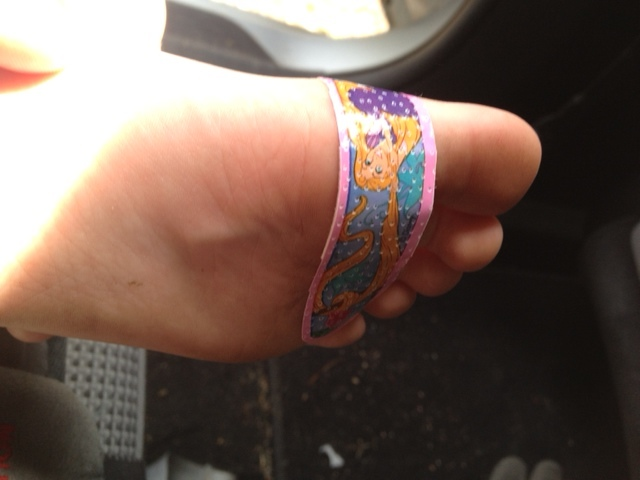 The splinter starts at the base of the big toe (under the band-aid) and can be seen trying to poke through the middle of her foot.