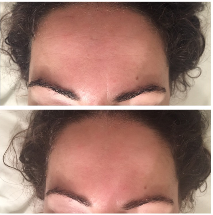 Before and after just one treatment