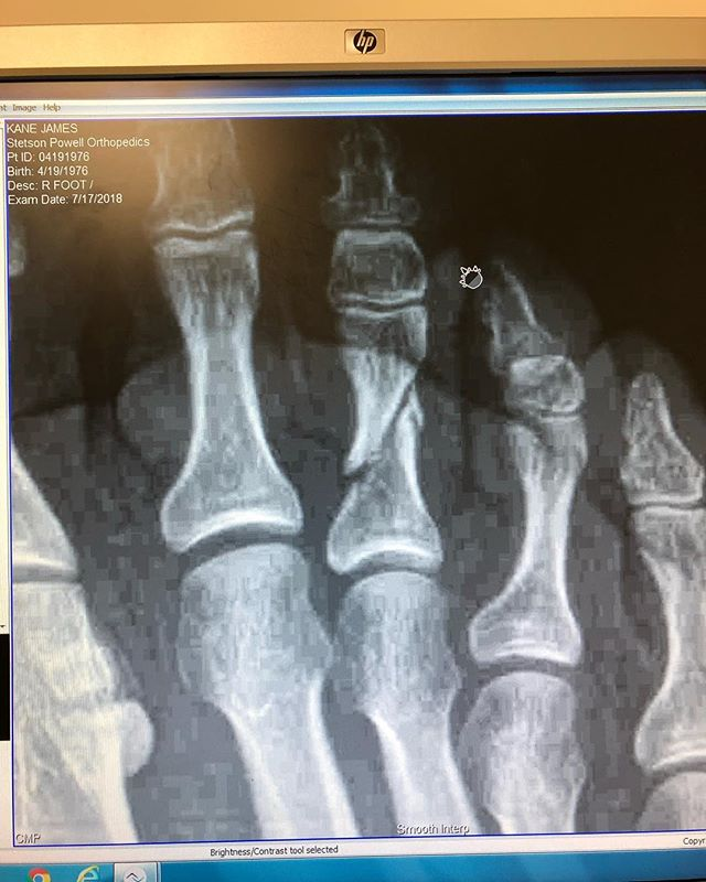 That's what they call a broken toe.