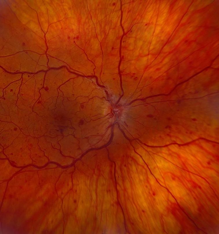 retina7.jpg