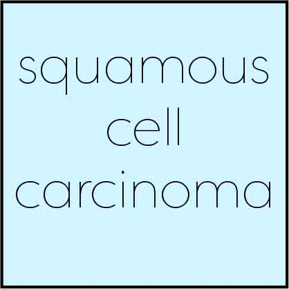 squamous-cell-carcinoma-dr-amy-valet-traceside-dermatology.jpg