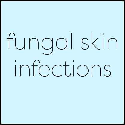fungal skin infections dr amy valet md dermatologist traceside dermatology best nashville dermatologist tinea corporis pedis manuum faceii capitis