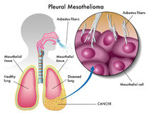 pleural-mesothelioma-medical-illustration-effects-32786689.jpg