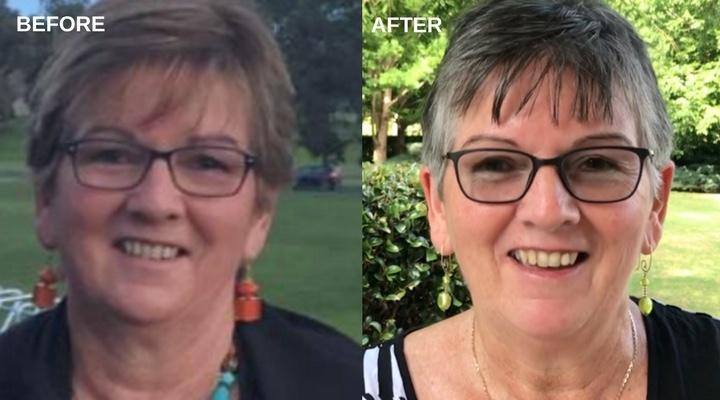 Karen Cornish Before & After I Feel Good Program.jpg