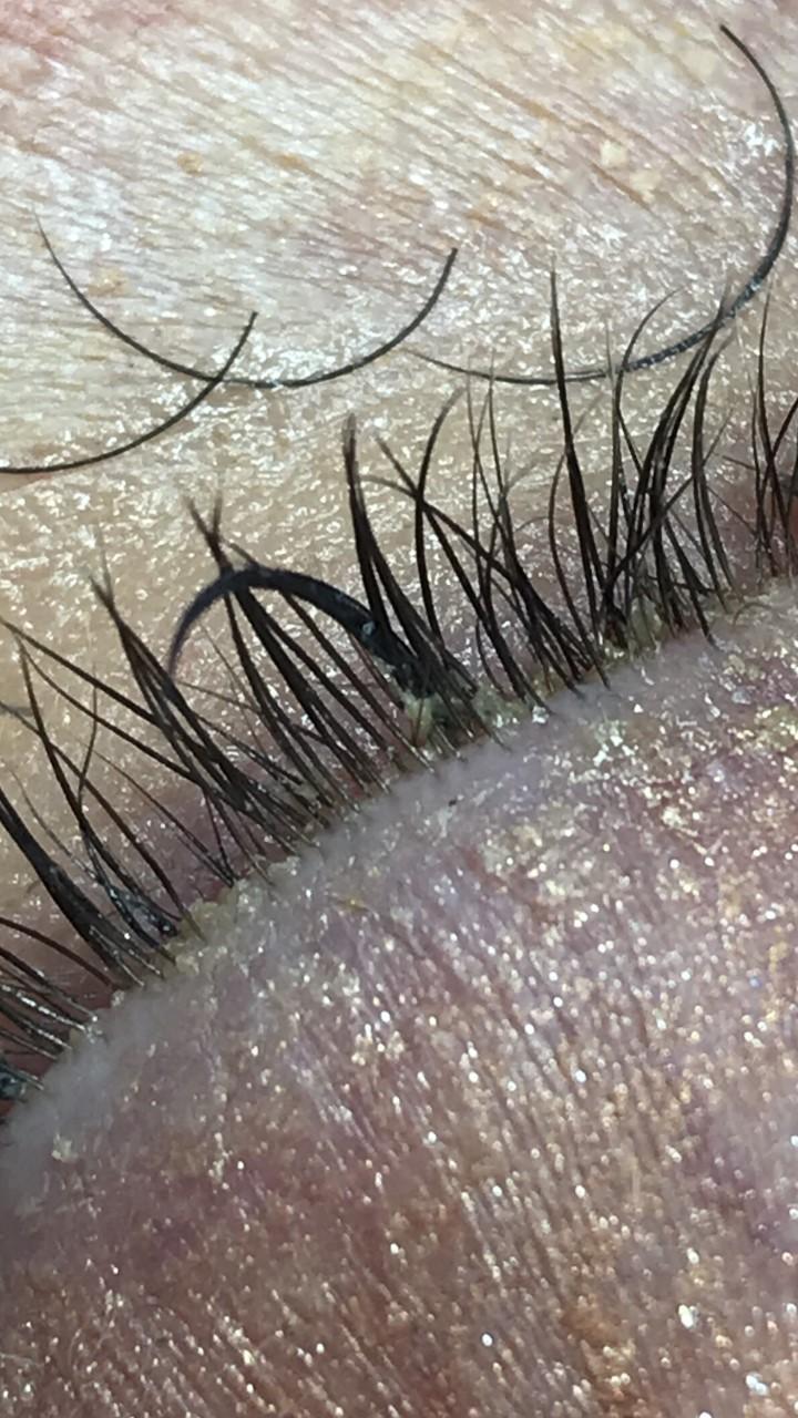 Sammenlimte vipper er vanskelige å rense. Når det er store mengder lim eller sammenlimte vipper får man ikke renset huden. Dette bildet er tatt etter at vi har fjernet noen av extensionsene kunden kom inn med.