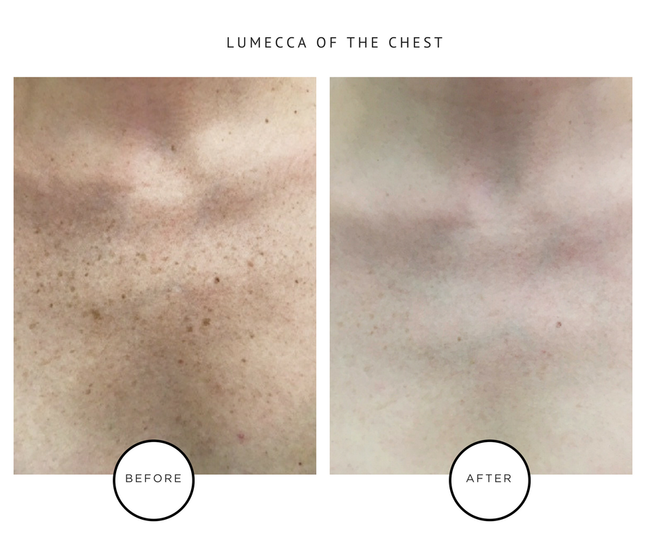 Lumecca Laser Treatment-Results-IPL-NYC