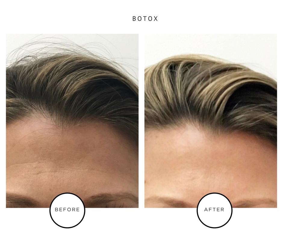 Best Botox Results-NYC-Lauren Abramowitz-ParkAveSkin
